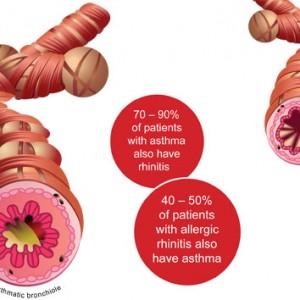 asthma-rhinitis_connection_en