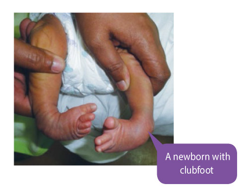 newborn-with-clubfoot
