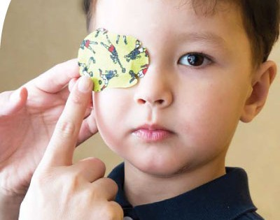 A child with right eye patching therapy for his left 'lazy eye'