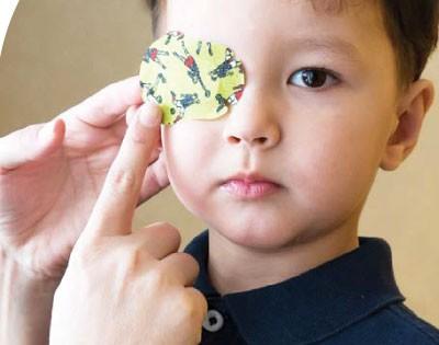 Gambar di atas menunjukkan seorang kanak-kanak dengan terapi menampal mata kanan untuk merawat 'mata malas' kirinya.